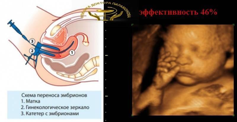 Перенос эмбрионов при эко: рекомендации до и после процедуры