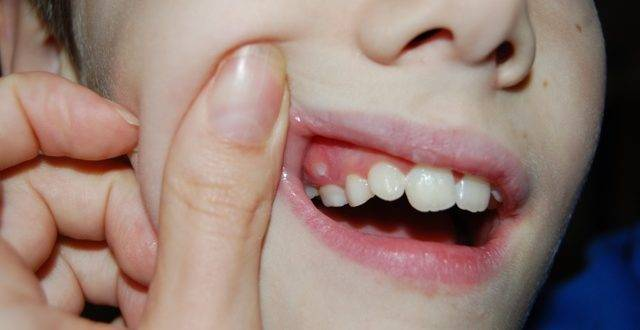 Красный нарост на десне у ребенка фото | стоматологический портал