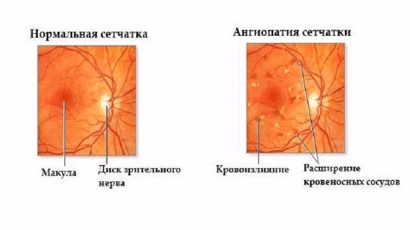 ✅ ангиопатия сетчатки глаза у детей что это такое - денталюкс.su