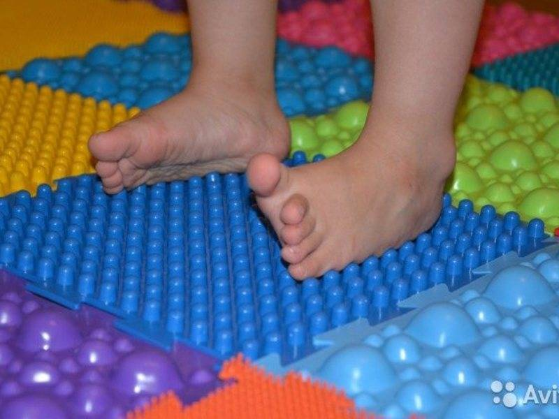 Профилактика плоскостопия у детей разного возраста