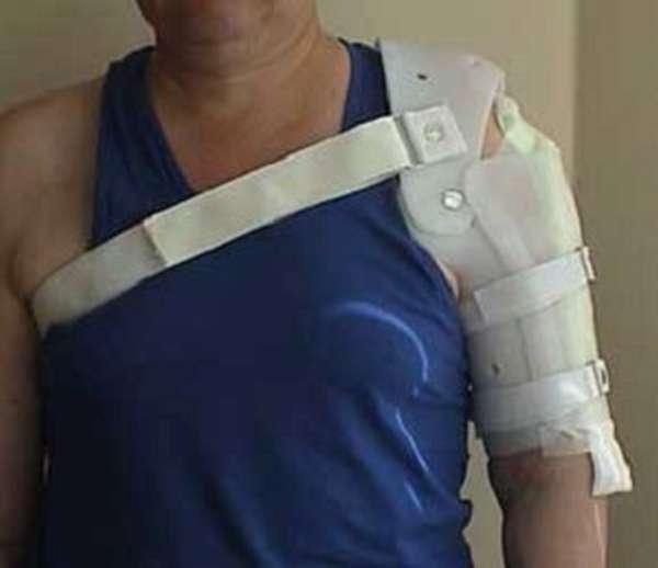 Перелом ключицы: симптомы, признаки, лечение, последствия, реабилитация, как долго заживает перелом