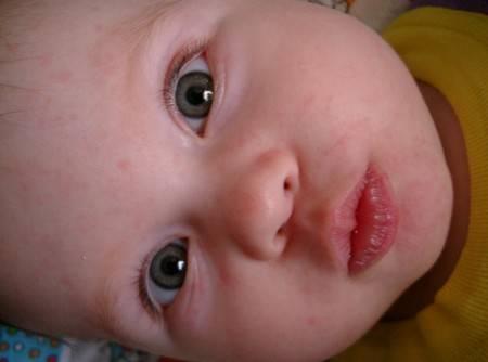 Аллергия у грудного ребенка на цветную капусту