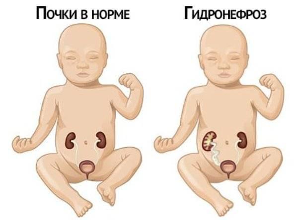 Причины расширения лоханки почки у новорожденного и ребенка старшего возраста, методы лечения. размер почек