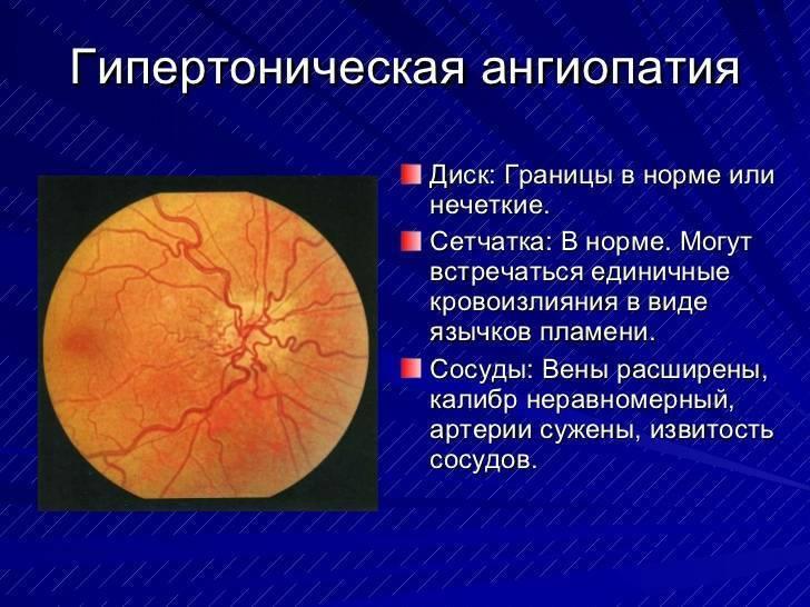 Ангиопатия сетчатки глаза у ребёнка: симптомы, лечение oculistic.ru ангиопатия сетчатки глаза у ребёнка: симптомы, лечение