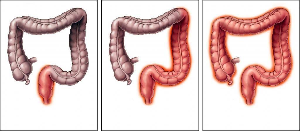 Долихосигма кишечника у ребенка: причины, симптомы, лечение