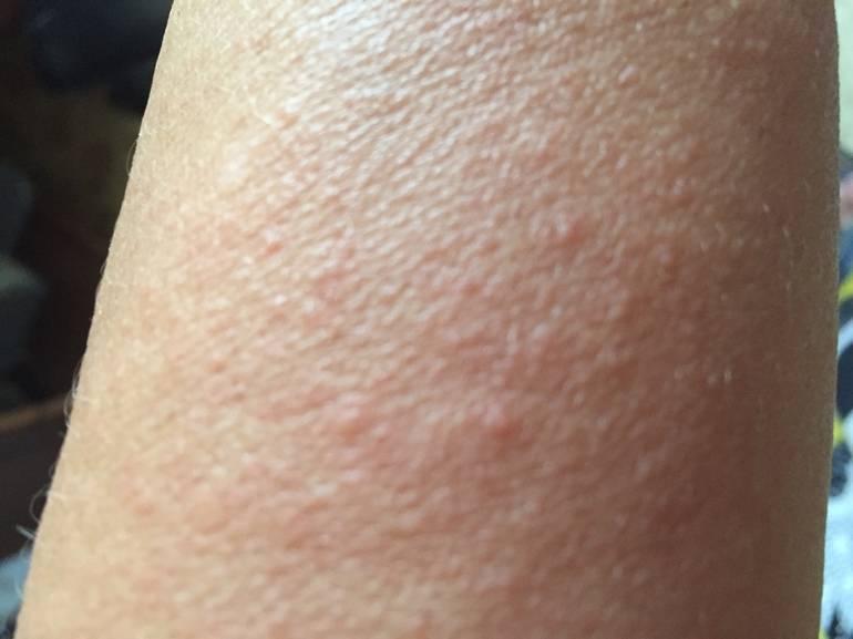 Сыпь у ребенка на руках и ногах, на локтях и коленях, ладонях и ступнях