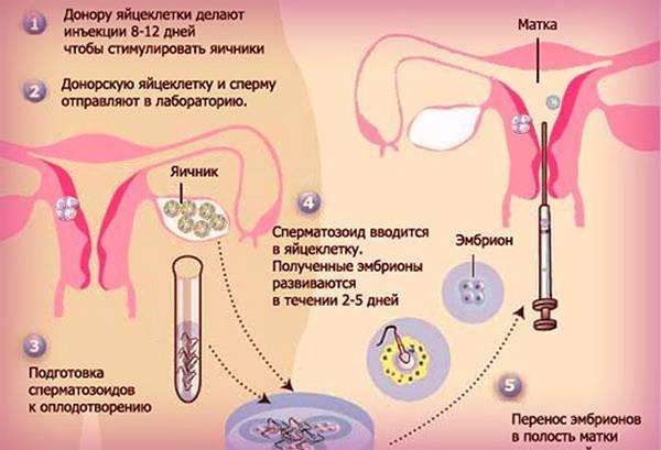 Эко после лапароскопии: когда разрешается зачатие