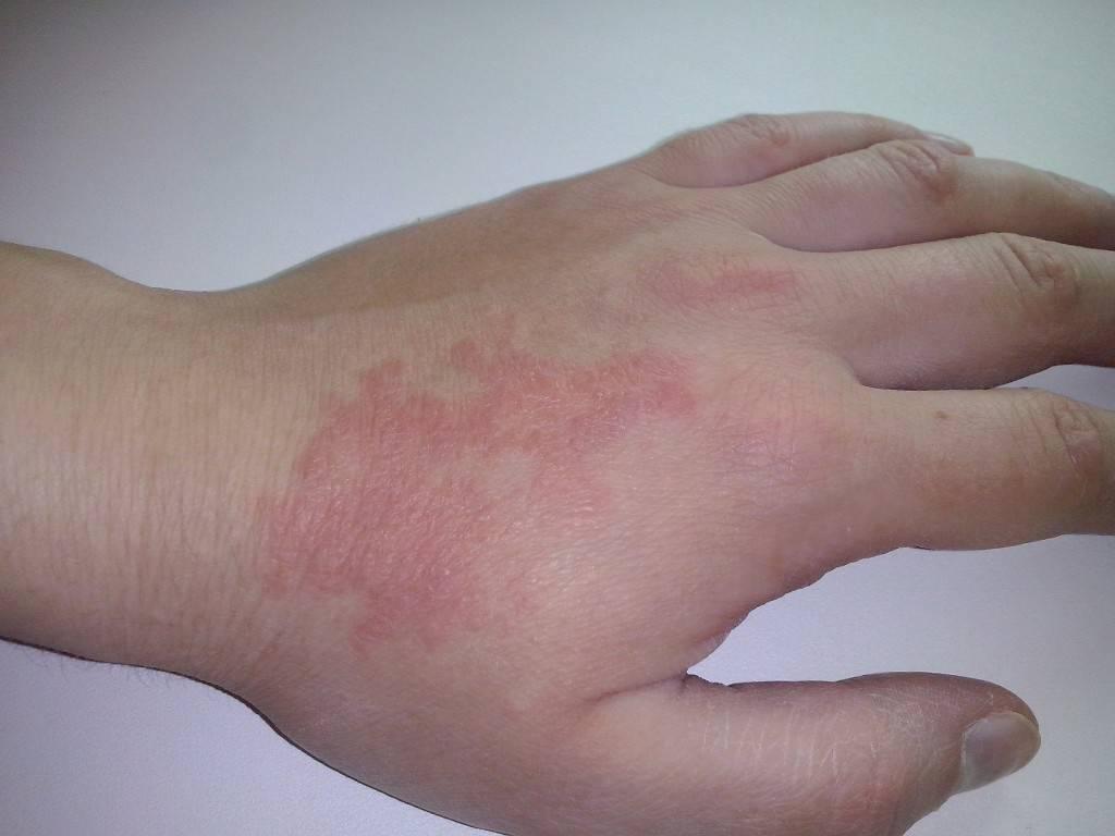 Шелушатся ладошки у ребенка. почему шелушится кожа на ладонях рук | здоровье человека