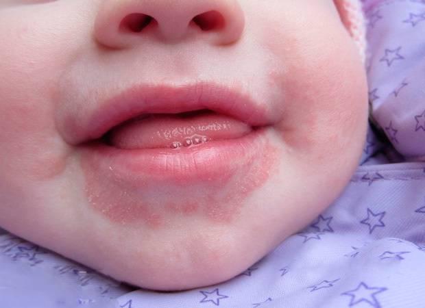 Дерматит на лице: виды, лечение