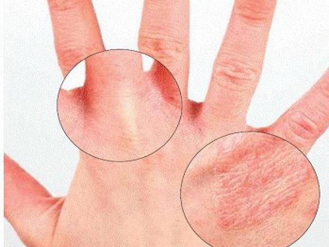Причины шелушения кожи на руках и ногах, методы лечения