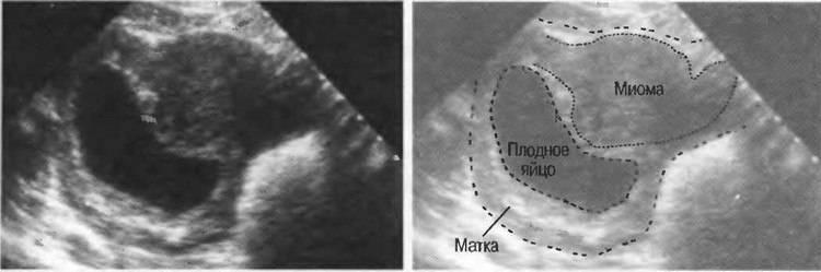 Киста или беременность — можно ли перепутать при узи