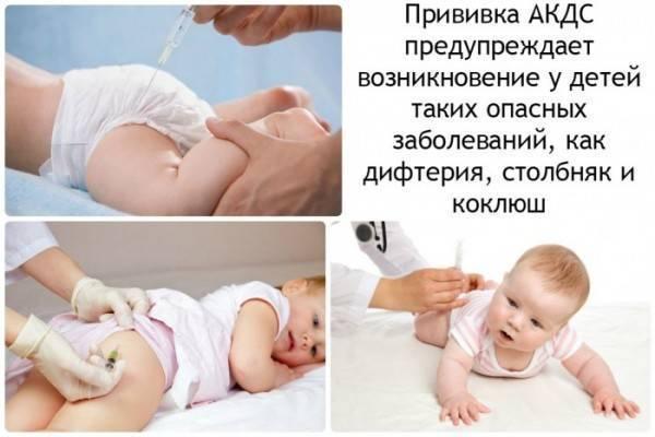 Как подготовить ребенка к прививке? о профилактике поствакцинальных осложнений. подготовка ребенка к прививке акдс: осмотр перед вакцинацией, прием фенистила или супрастина