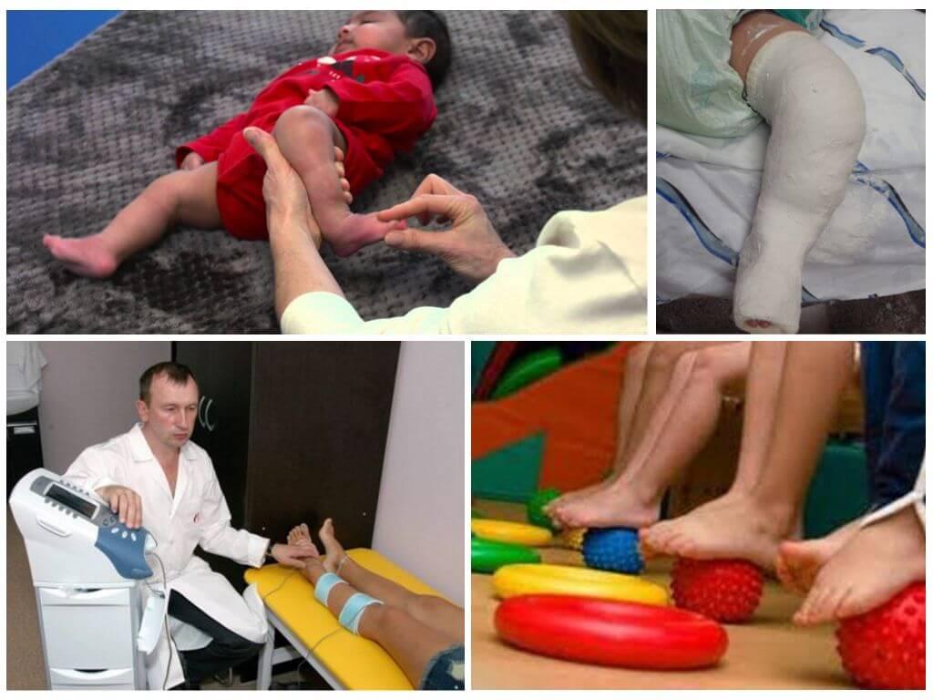 Комаровский - врожденная косолапость у детей: фото, признаки, лечение, массаж