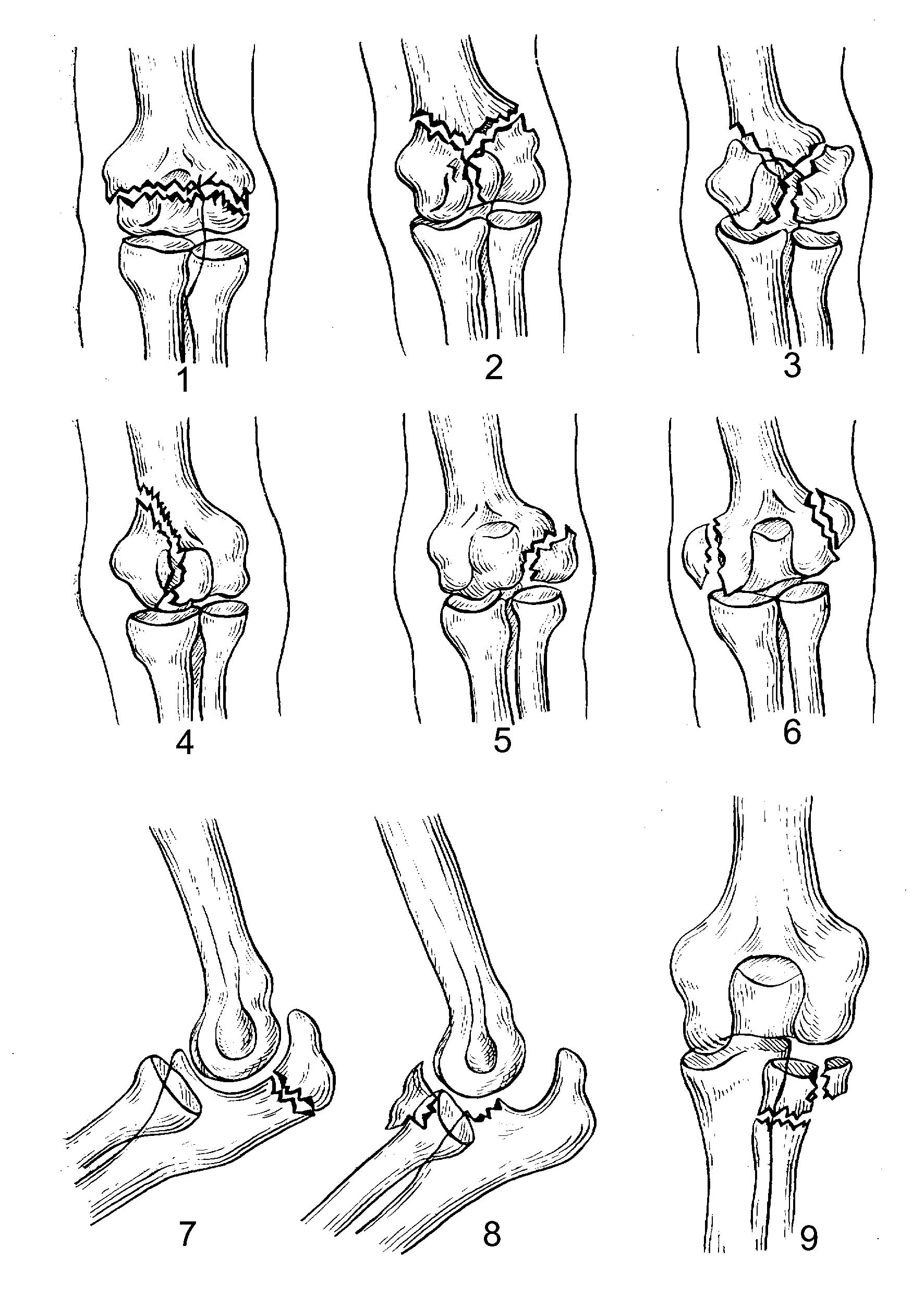 Чрезмыщелковые переломы плечевой кости