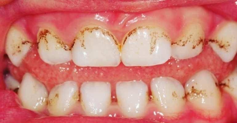 Пигментация на зубах причины и диагностика, лечение народными средствами