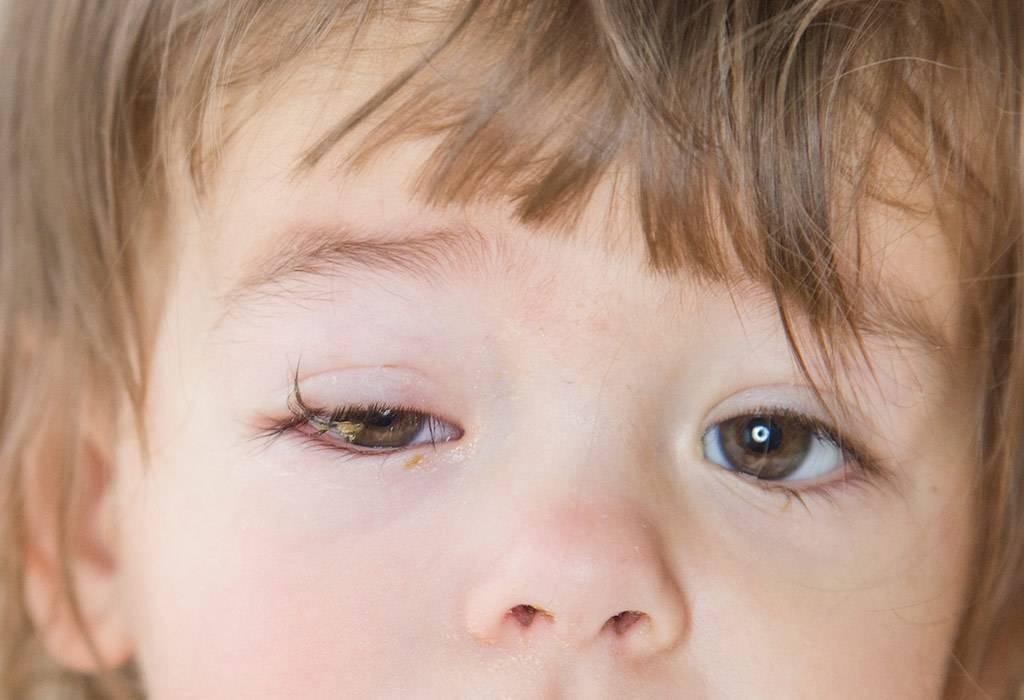 Аллергический конъюнктивит у детей • аллергия и аллергические реакции