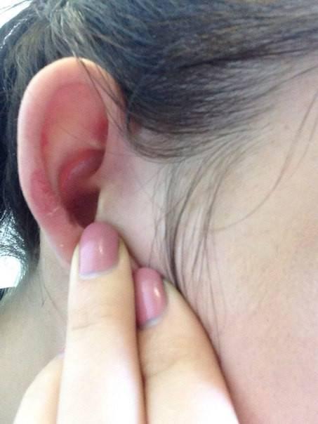 Трескается кожа за ушами у ребенка - педиатор