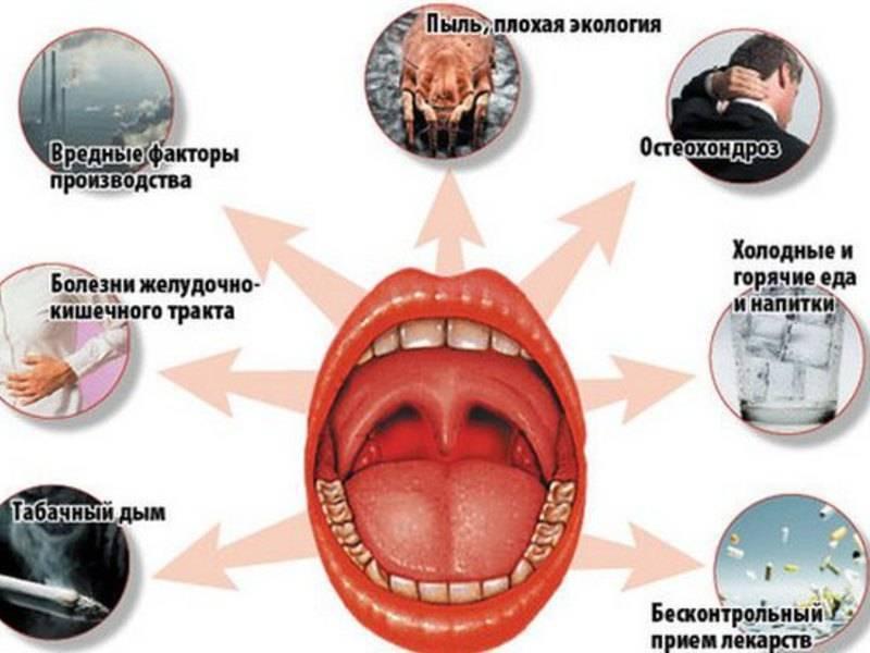 Грибковая ангина: причины и клиническая картина, медикаментозная терапия и возможные осложнения, как выглядит