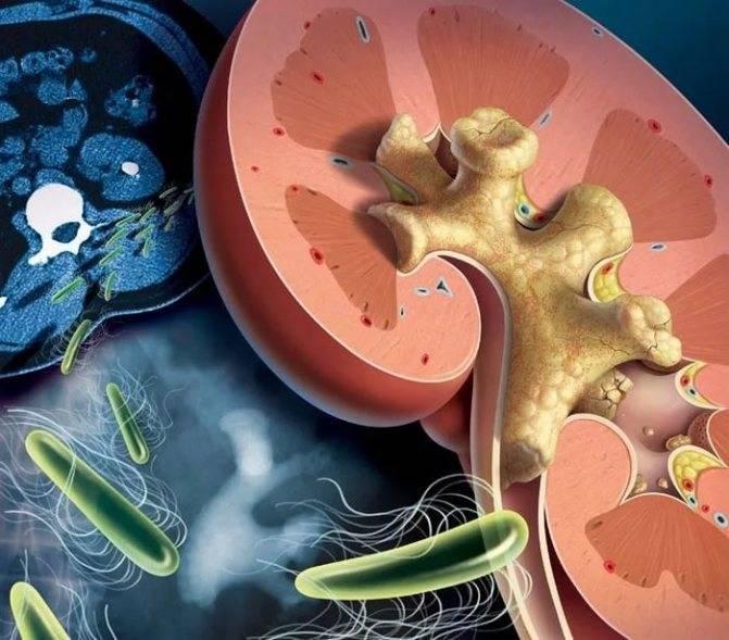 Инфекция мочевыводящих путей у детей: причины и симптомы. лечение воспаления