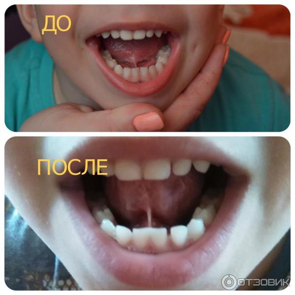 Почему подрезают уздечку под языком. как и в каком возрасте детям делают подрезание уздечки под языком и зачем нужна пластика