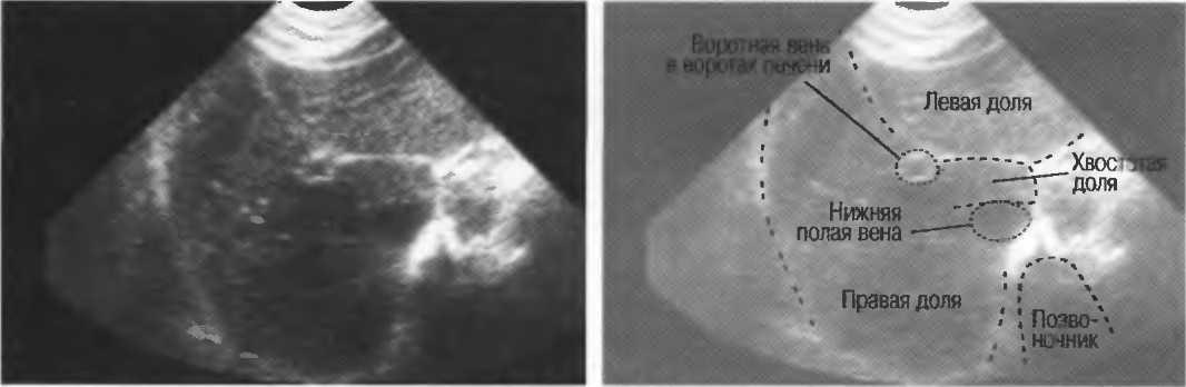 Увеличена печень у новорожденного грудничка: причины и лечение