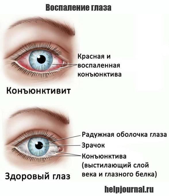 У ребенка красные глаза: причины, что делать и как лечить покраснение, сопутствующие симптомы (без гноя, глаз чешется, припух, слезится), профилактика и осложнения