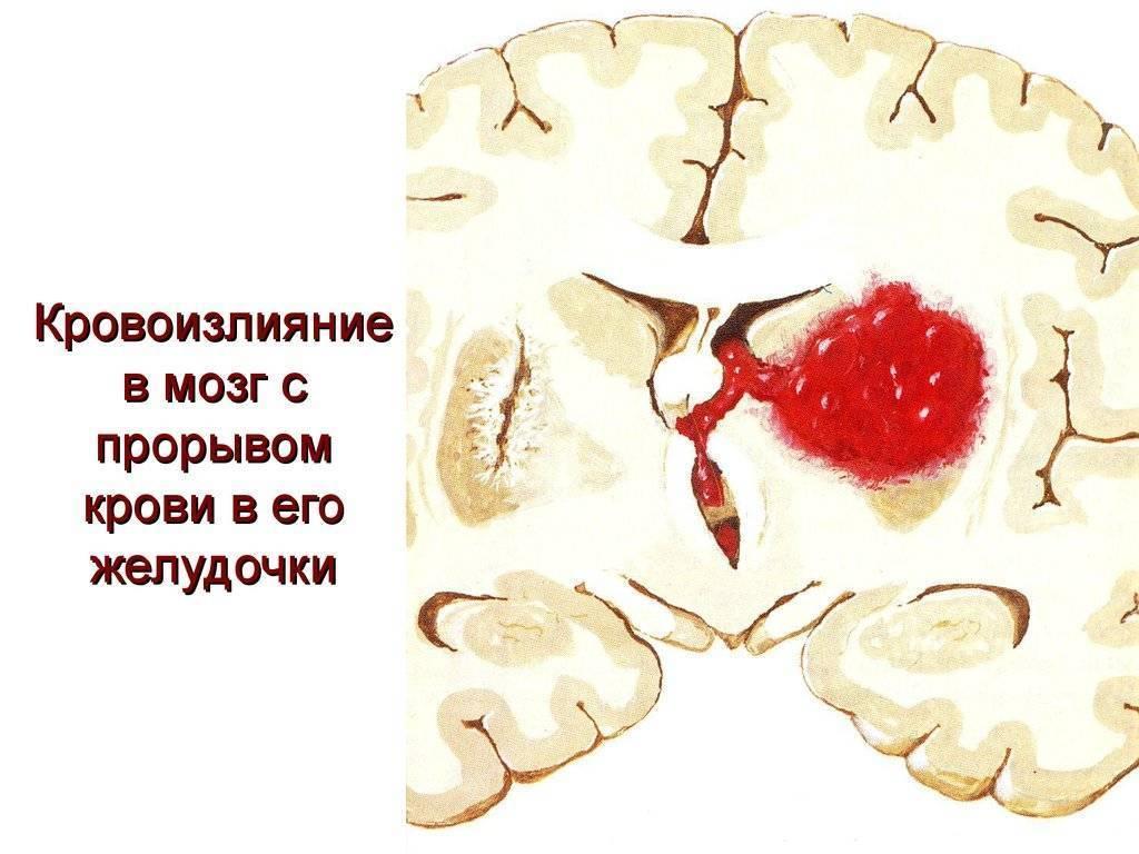 Каковы последствия кровоизлияния в мозг у новорожденного ребенка и что делать?