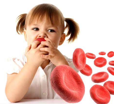 Железодефицитная анемия у детей: симптомы, причины и лечение