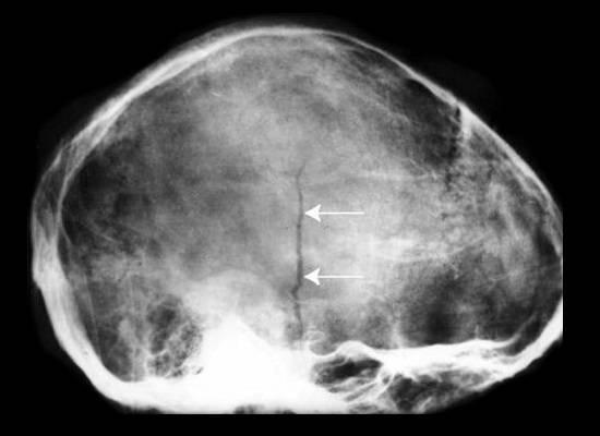 Вдавленный перелом черепа у грудничка