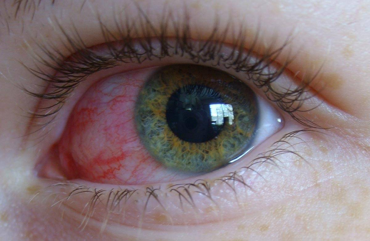 Вирусный конъюнктивит глаз: лечение у взрослых, симптомы, признаки и профилактика заболевания