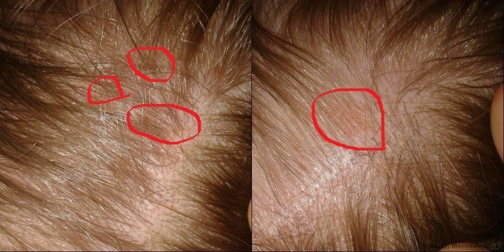 Себорея кожи головы у ребенка: лечение, детский шампунь от дерматита