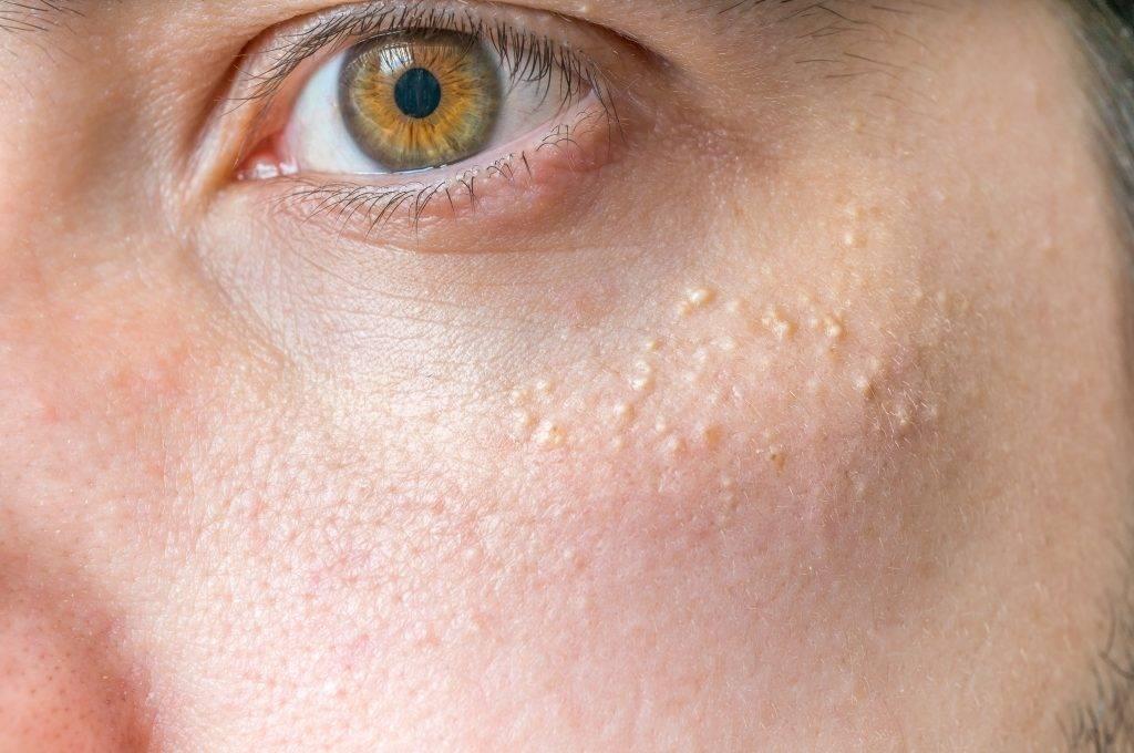 Белые пятна на лице у ребенка: причины появления и методы лечения