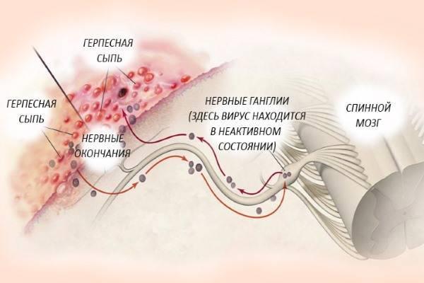 Опоясывающий лишай (герпес): симптомы и лечение у взрослых и детей