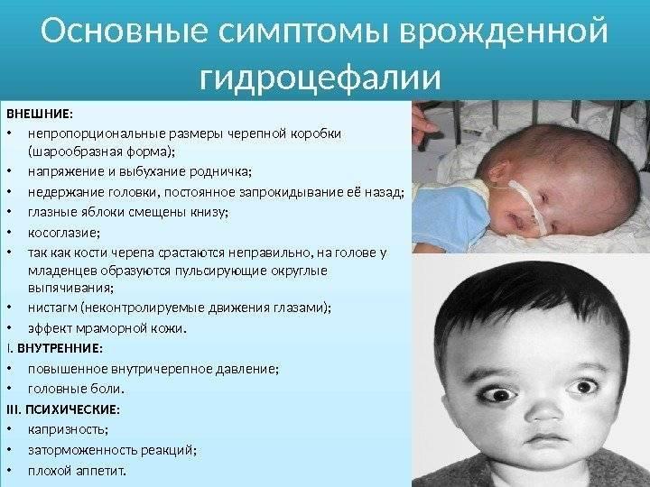 Гидроцефалия (водянка головного мозга) у новорожденного