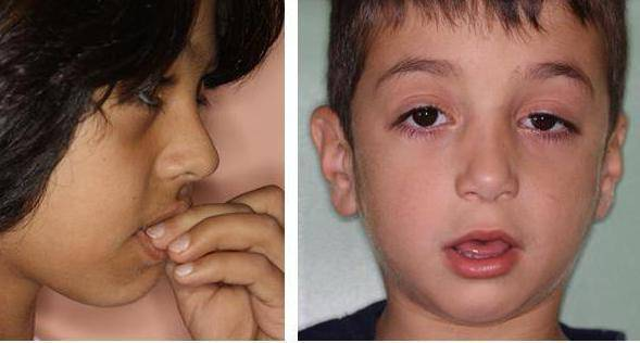 Почему у ребенка постоянно открыт рот