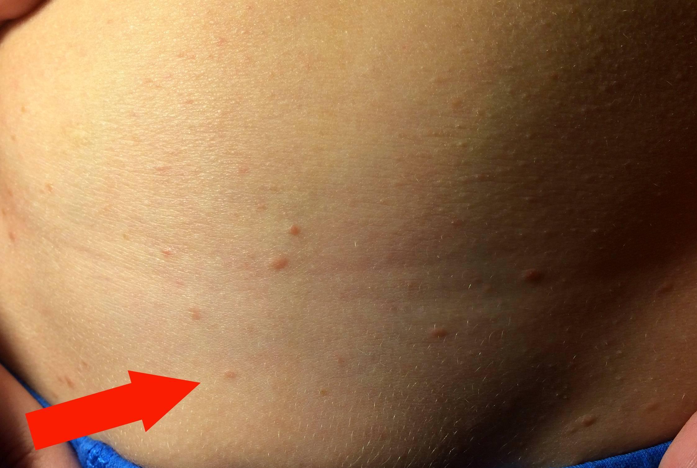 У ребенка сыпь на спине и животе: фото с пояснениями видов аллергии