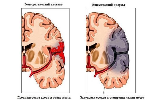 Кровоизлияние в мозг у новорожденного: последствия, степени и причины