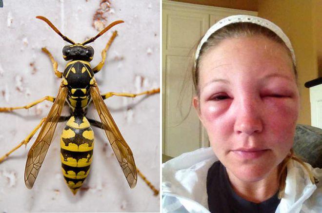 Как лечить укус осы? укус осы, опухоль: что делать. что делать если укусила оса в руку и она опухла