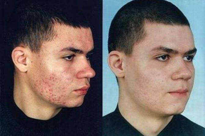 Лечение прыщей на лице у подростков: как избавиться от юношеских угрей, правильно вывести акне на лбу