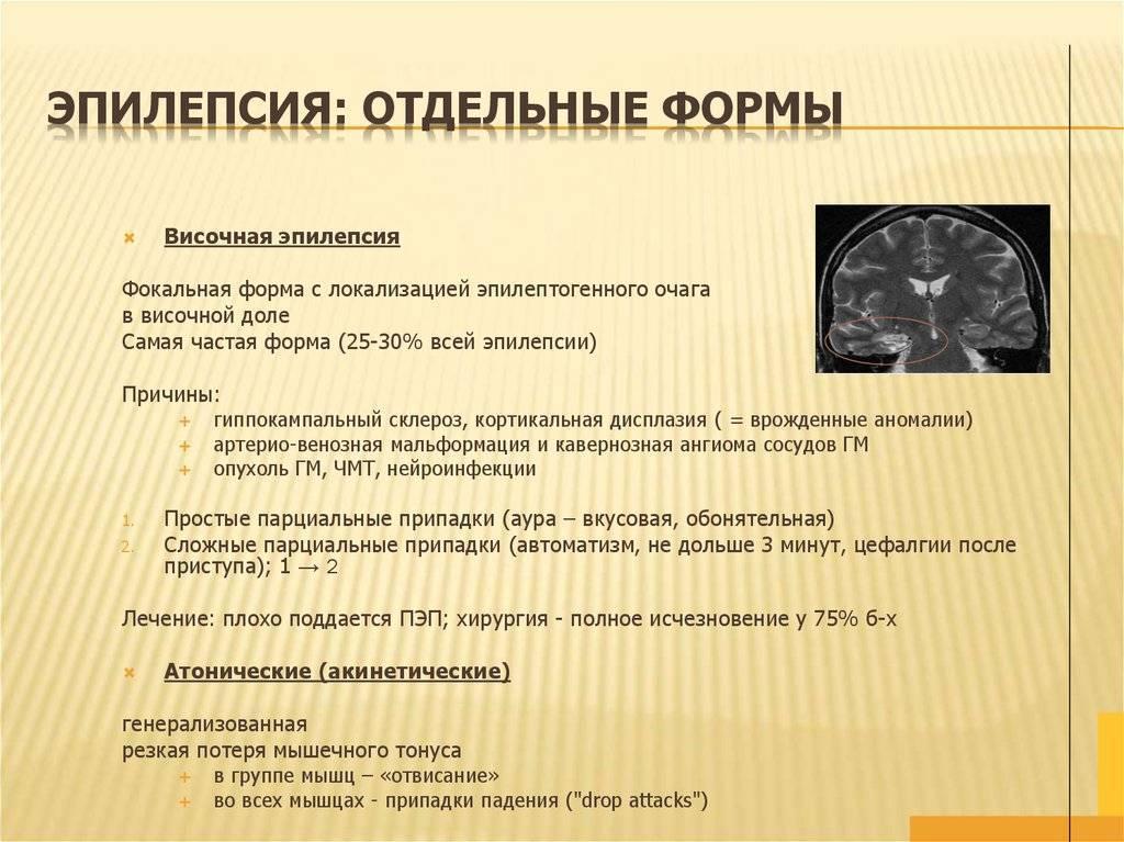 Ночная и другие виды эпилепсии у детей и их симптомы
