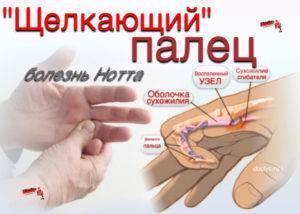 Болезнь нотта — симптомы и лечение. болезнь нотта у детей