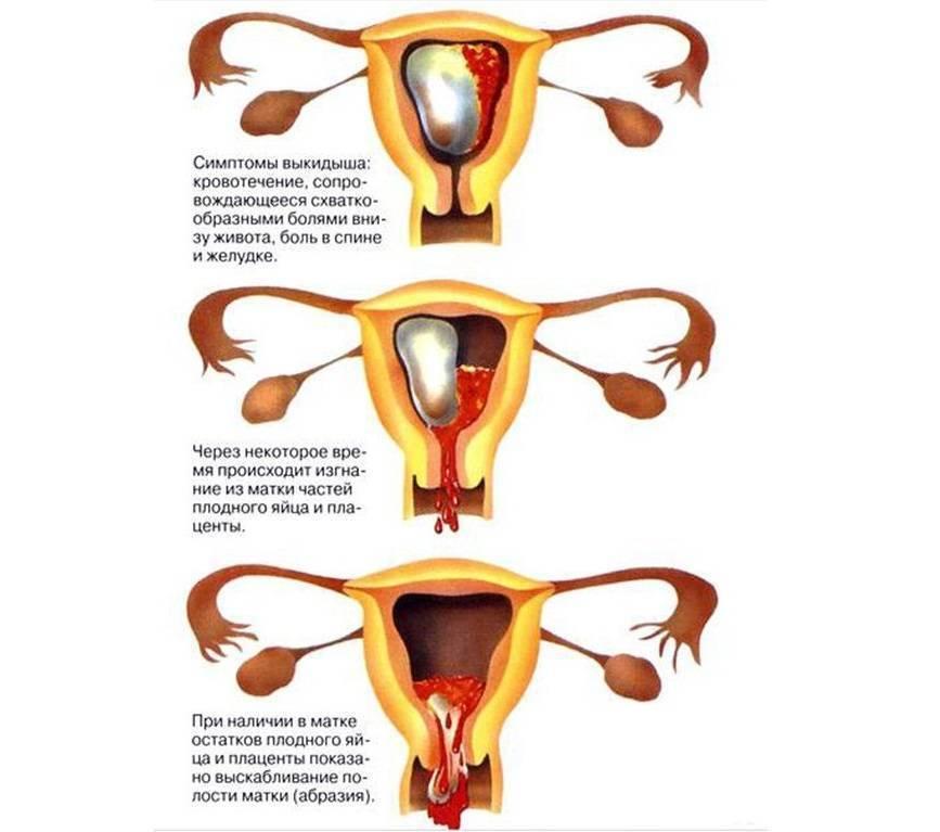 Почему болит низ живота в первом триместре беременности