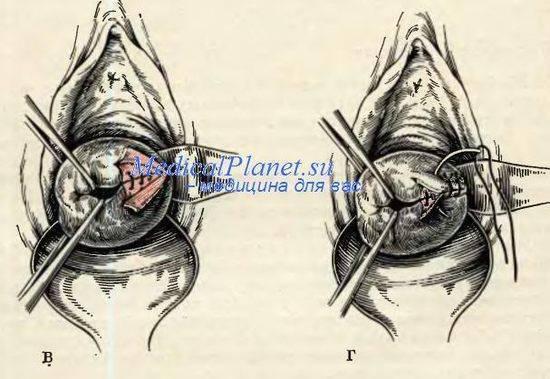 Как быстро восстановить влагалище после родов - упражнения для восстановление чувствительности мышц влагалища после родов