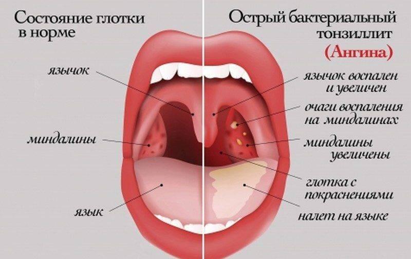 Рыхлое горло у ребенка – как выглядит и чем лечить воспаленные миндалины