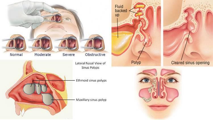 Как выглядят полипы в носу и кишечнике у ребенка: фото, симптомы и лечение