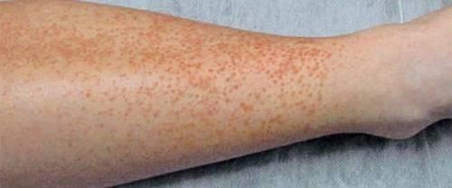 Геморрагическая сыпь - что это, фото, причины появления у взрослых, лечение