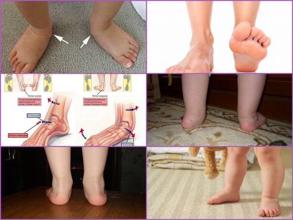 Деформация стопы у детей (19 фото): лечение и виды варусной или вальгусной деформации, доктор комаровский о плоскостопии и косолапии