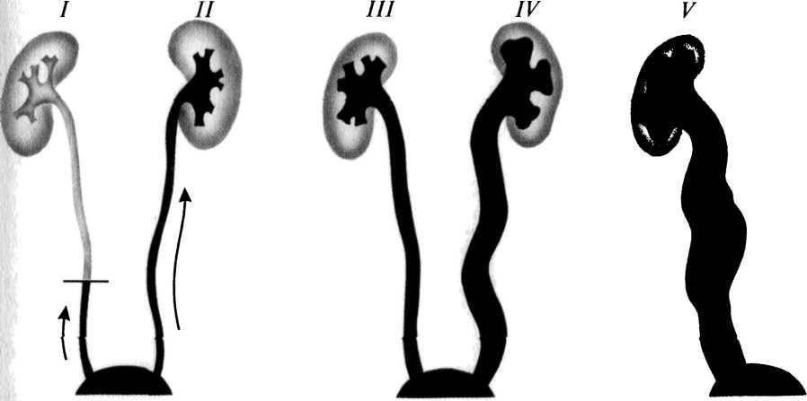 Пузырно-мочеточниковый рефлюкс: причины патологии, клинические проявления, диагностика и способы лечения