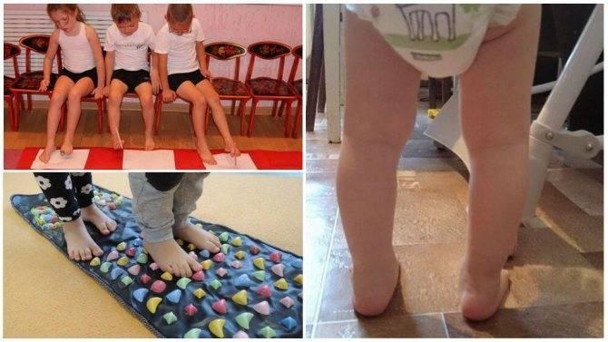 Medweb - лечение косолапости: комплекс упражнений и массаж для детей