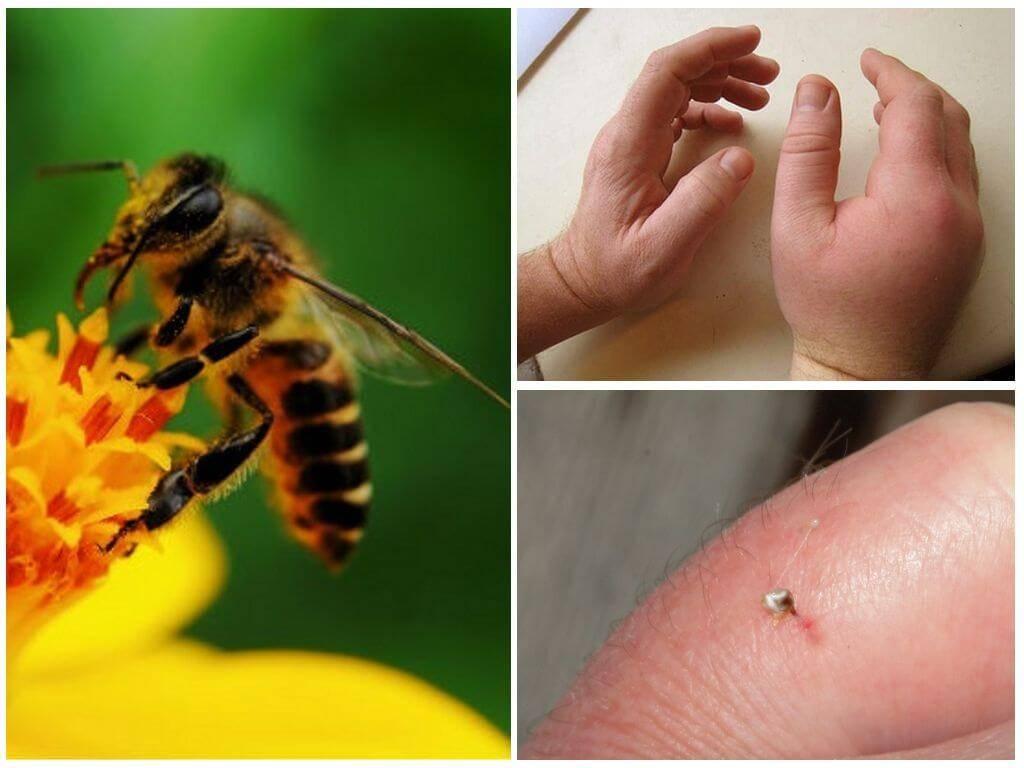 Укус пчелы: симптомы,как снять отёк, первая помощь в домашних условиях, польза и вред от укуса